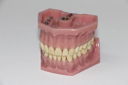 cara-memutihkan-gigi